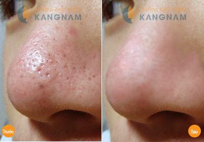 Bị dị ứng với mặt nạ trị mụn đầu đen ở mũi nên làm thế nào?5