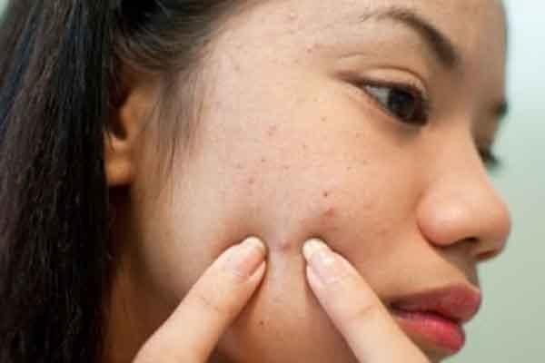 Những sai lầm thường gặp khi chữa trị mụn bọc ở mặt3