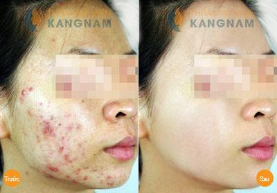 Mụn ẩn sâu dưới da là mụn gì và loại bỏ bằng cách nào?3