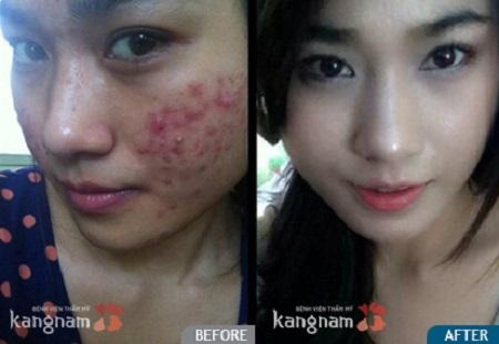 tri-mun-bang-cong-nghe-nano-skin1
