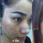 Trị mụn bằng công nghệ Nano Skin Kangnam – Da sáng mịn sau 60′
