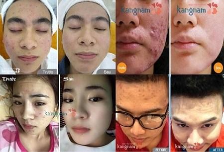 các loại mụn trên da mặt 7