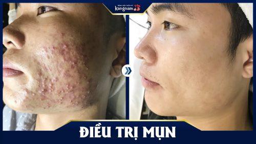 trị mụn bằng công nghệ nano skin