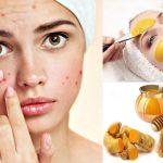 12 Cách trị mụn bằng Mật Ong tại nhà siêu Đơn giản và Hiệu quả