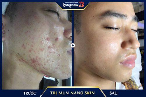 trị mụn vĩnh viễn bằng nano skin