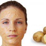 7 cách đắp mặt nạ khoai tây Trị mụn, Ngừa thâm và Trắng da
